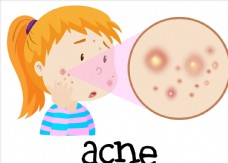 卡通儿童和皮炎
